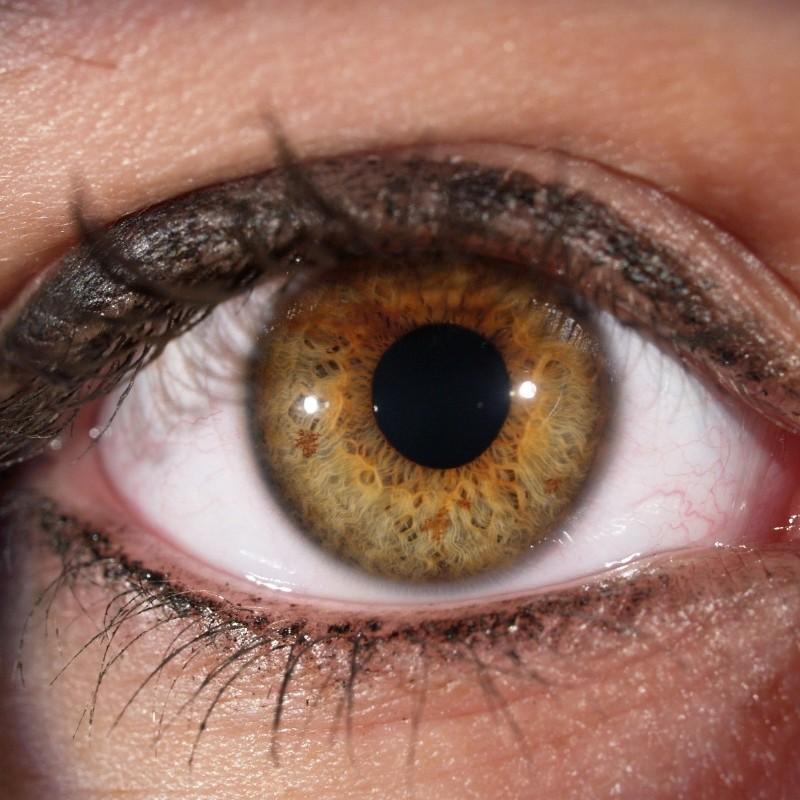 Irisfoto's en Irisdiagnose | Enschede